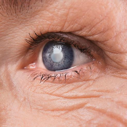 Cataractă după operație, vederea nu și-a revenit